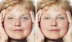 Perle Bleue - anti-aging - bluff - Köpa - resultat