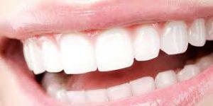 GoWhite - för tandblekning - Sverige - köpa - Åtgärd