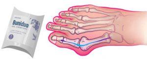 Buniduo Gel Comfort - på krokig tå - nyttigt - apoteket - sverige