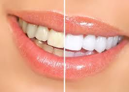 Snowhite Teeth Whitening - köpa - funkar det - Pris