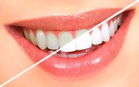 Snowhite Teeth Whitening - tandblekning - Forum - bluff - test