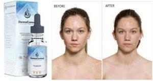 DermaCorrect - sund hud - test - kräm - funkar det